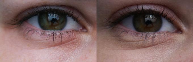 droge huid rond ogen